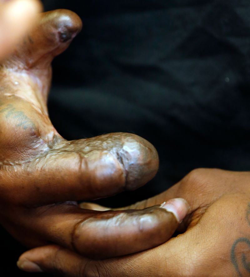 Jason Pierre Paul Signs One Year Deal With Giants: Jason Pierre-Paul Reveals His Injured Hand For The First